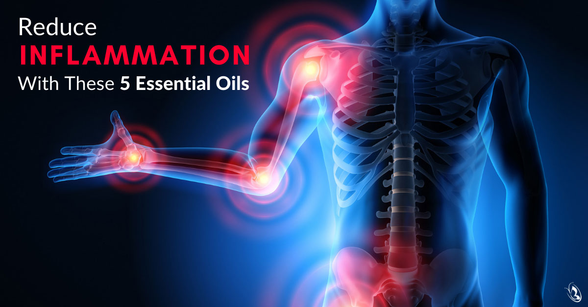 Reduce Inflammation With These 5 Essential Oils