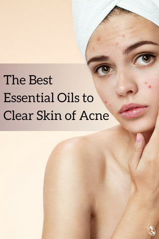 The Best Essential Oils to Clear Skin of Acne Pinterest