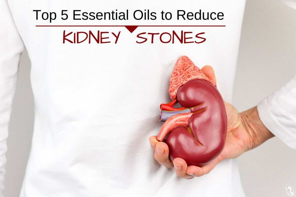 Top 5 Essential Oils to Help Reduce Kidney Stones