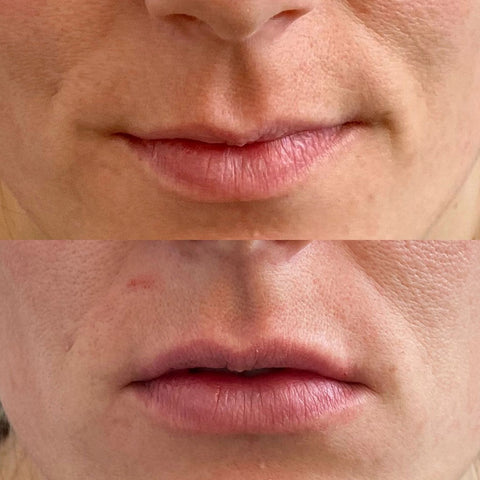 edmonton lip injections before after