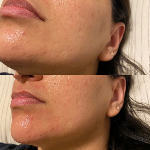 edmonton microneedling before after
