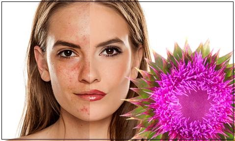 Could Reduce Acne