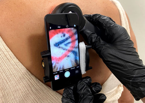 Close up of tattoo removal process