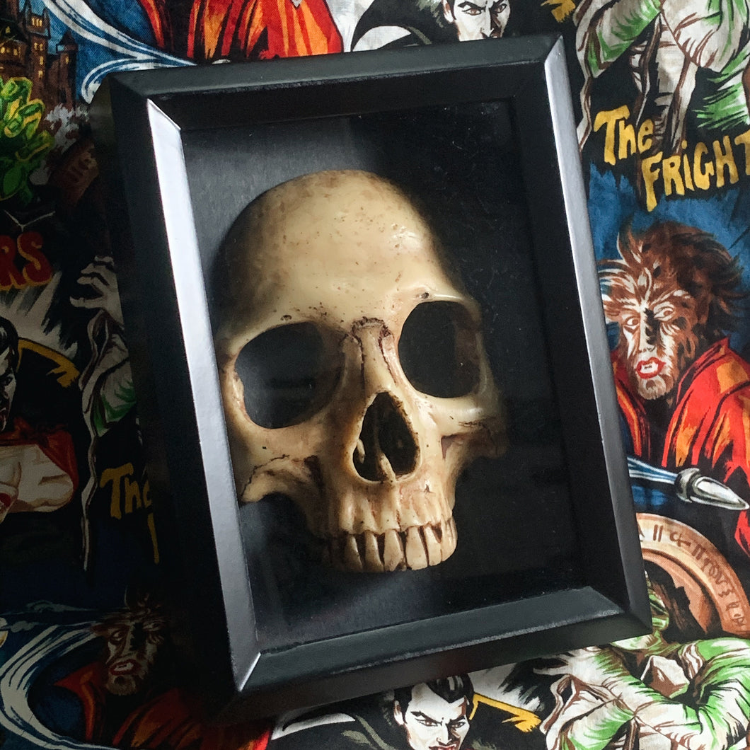front portion of human skull set in a black shadow box frame.