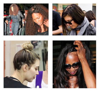 Female Celebrities Suffering From Hair Loss Boostnblend Usa