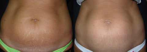 Stretch Mark Reduction