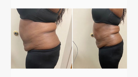 Ultrasonic Cavitation Before And After