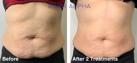 Cavitation Treatment Before and After