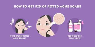 How to get rid of pitted acne scars
