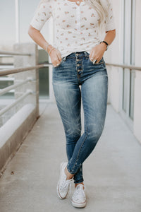 Madison Button Fly Skinny Jeans