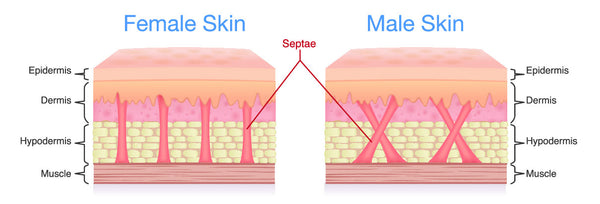 What is cellulite and it's structure