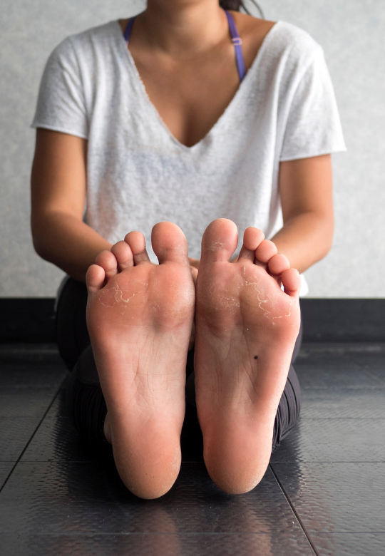 Custom Orthotics – Who Can Benefit From Them?