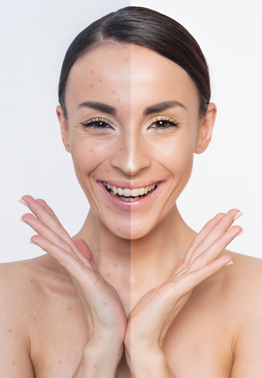 Naturopathic Approach to Acne