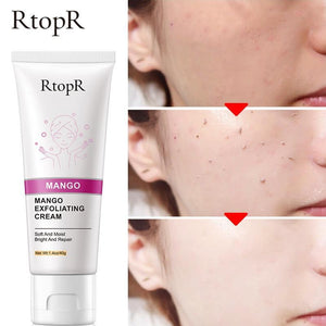 Deep Cleansing Exfoliating Peeling Gel
