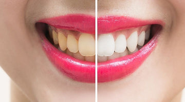 At Home Whitening Tricks & Tips
