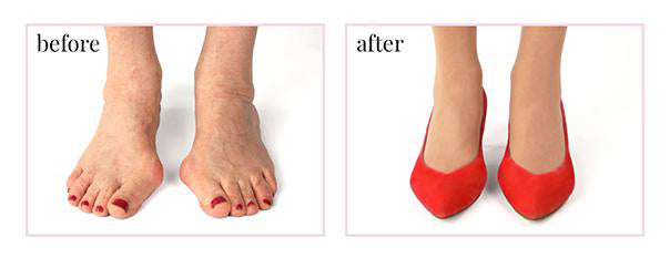 image showing how sole bliss shoes help with bunions