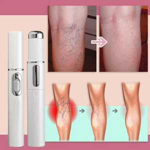 Blue Light Therapy Varicose Veins Pen