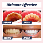 UltraWhite  Stain Removal Toothpaste