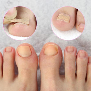 Glue Free Toenail Patch