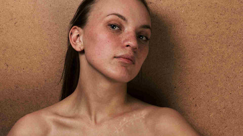 Collagen supplements for scars