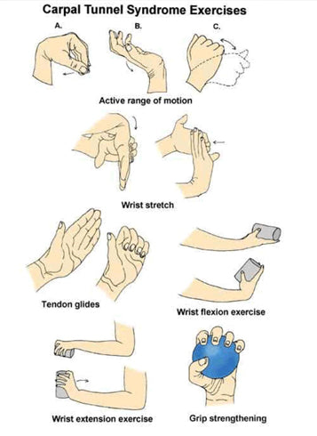 Tips to Prevent Wrist Aches and Carpal Tunnel