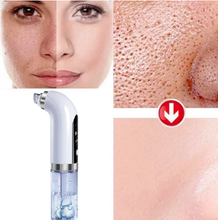 Load image into Gallery viewer, Acne and Blackhead vacuum Cleaner.