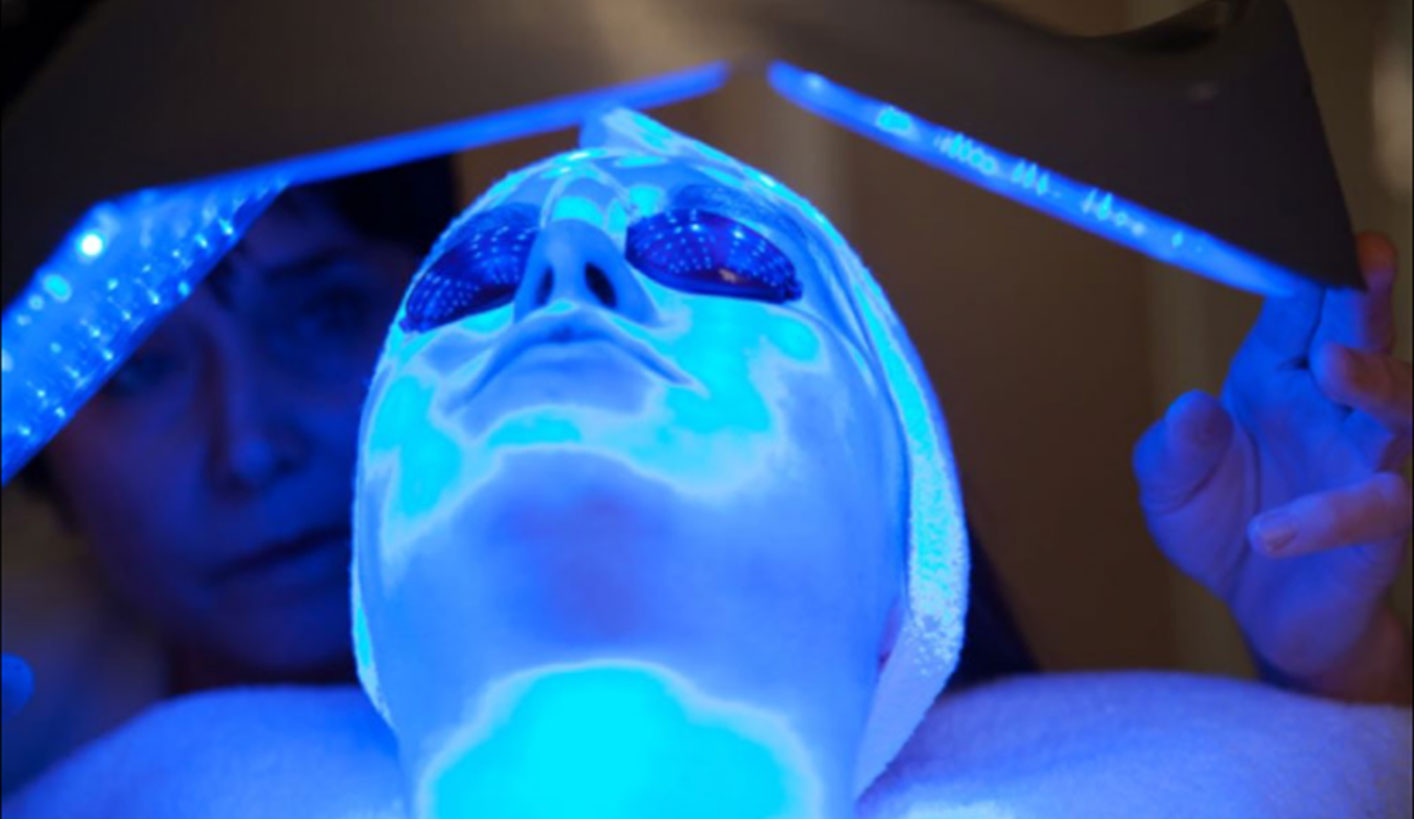 Blue light therapy to treat acne