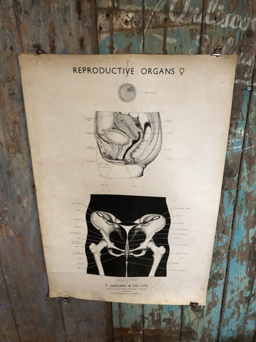 Vintage medical poster T. Garrard & Co. reproductive organs