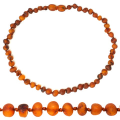 Amber Teething Necklace - 12.5