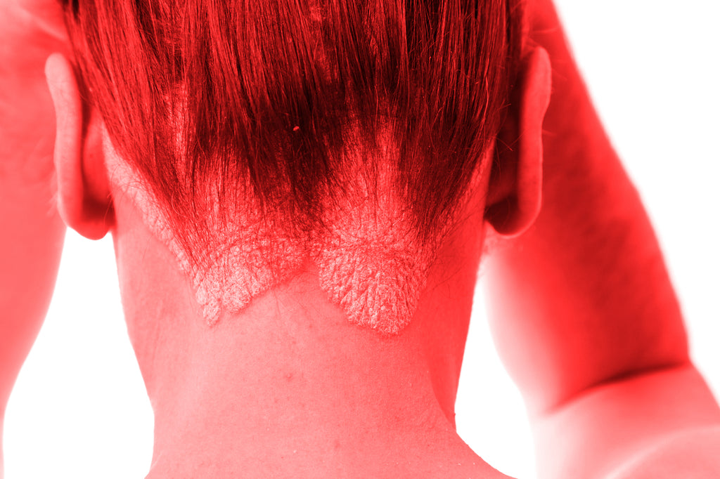 Benefits of Red Light Therapy for Psoriasis
