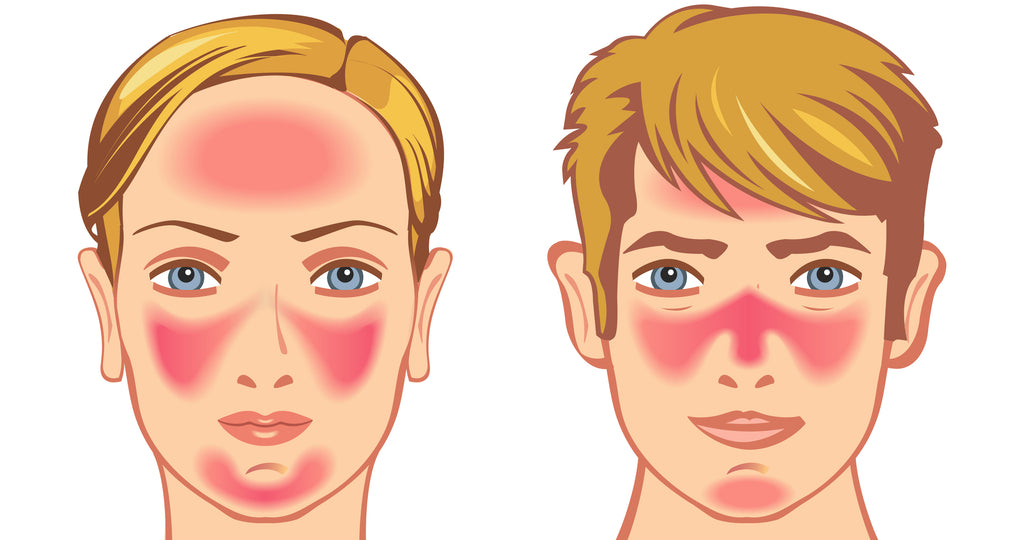 How red light therapy helps with rosacea