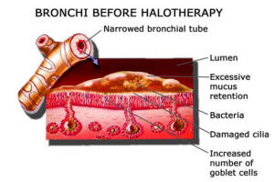 Bronchi Before Halotherapy