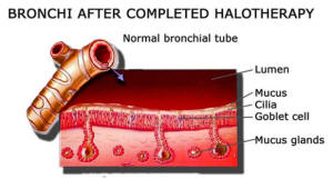 Bronchi After Halotherapy