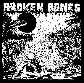 Broken Bones Back Patch - DeadRockers