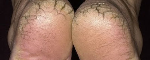 Cracked heels for Sweet Potato Lotion