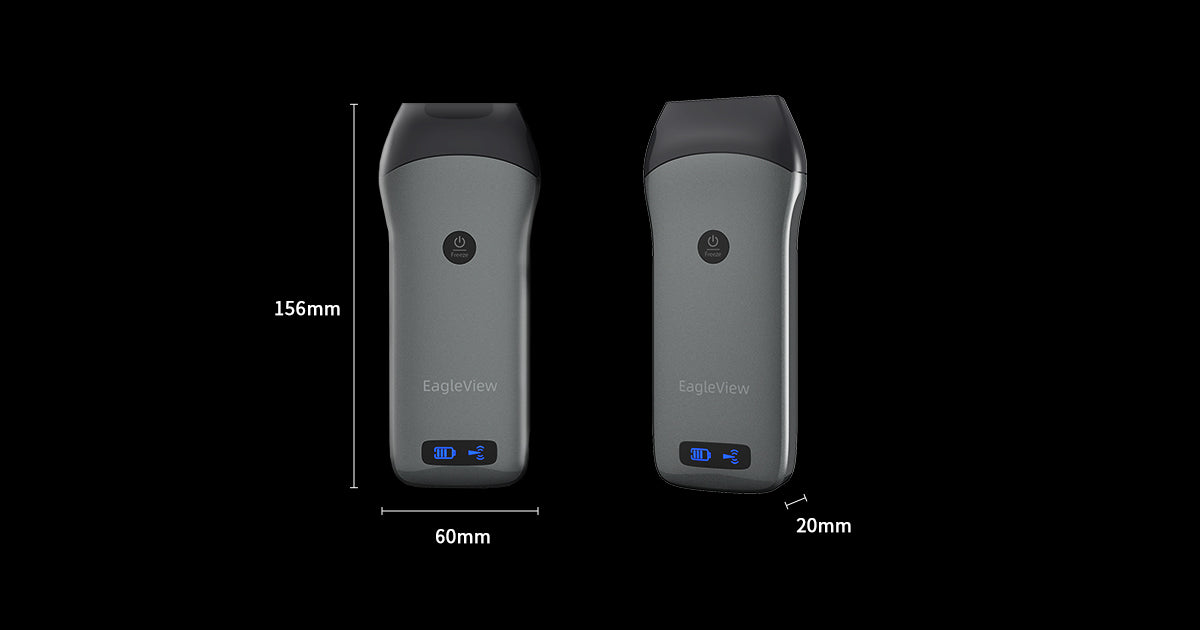 EagleView Linear Handheld Ultrasound is only a hand size.
