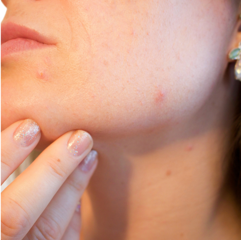 Dear Pimples-If you're going to live on my face, I need to see some rent.