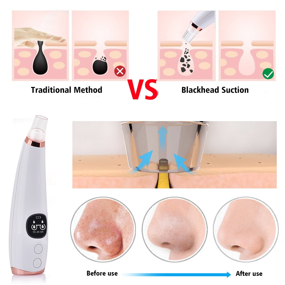 Vacuum Pore Cleaner Skin Care Standard