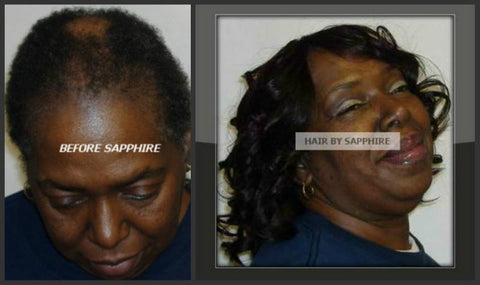 BEFORE AND AFTER ALOPECIA BALDNESS HAIR STYLES SEW IN PROTECTIVE HAIRSTYLES AFRICAN AMERICAN BLACK HAIR STYLE HUMAN HAIR EXTENSIONS BY SAPPHIRE OF HAIR BY SAPPHIRE
