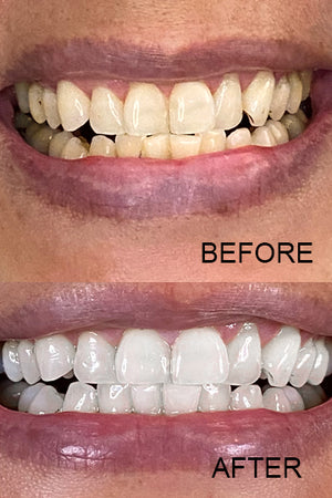 smile sol oral care teeth whitening at home kit beautiful pearly white teeth oral health radiant bright smile whitening pens real results