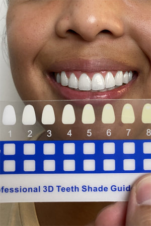 smile sol oral care teeth whitening at home kit beautiful pearly white teeth oral health radiant bright smile whitening pens