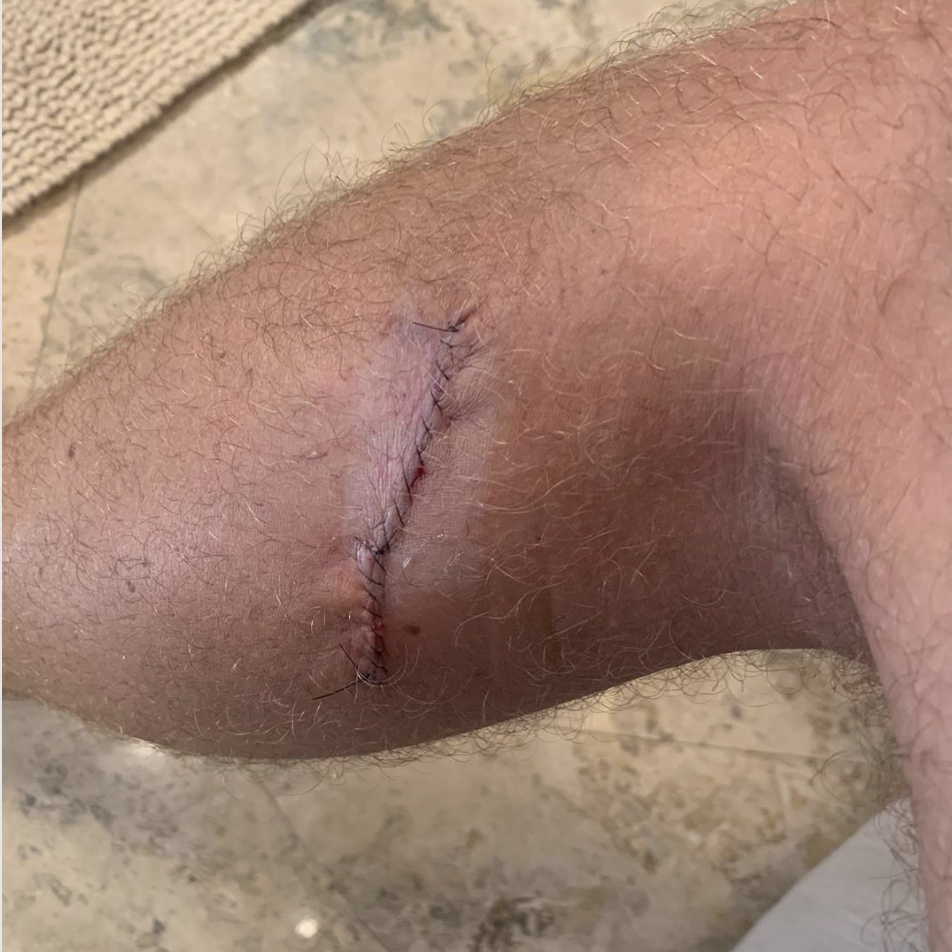 Justin Thomas Skin cancer scar