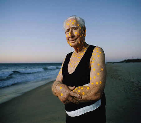Australian lifeguard skin cancer