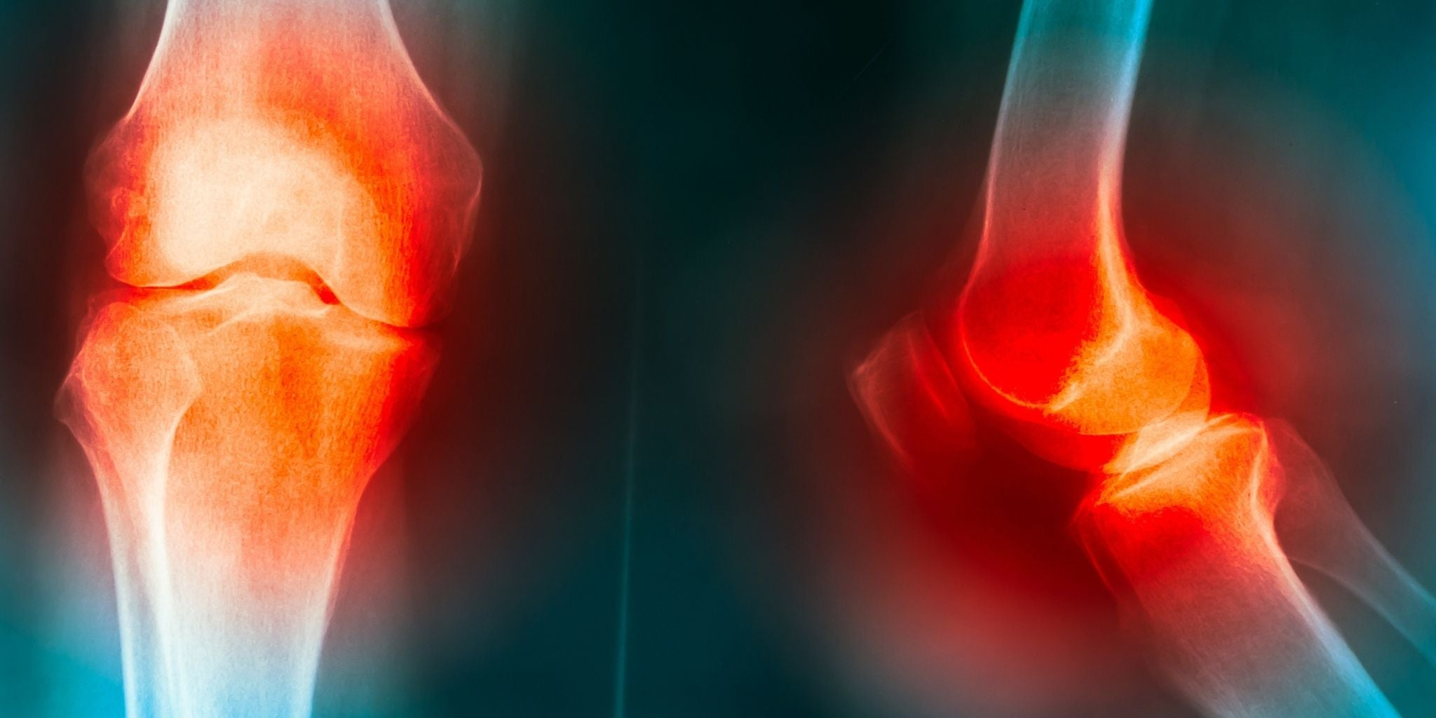 Best Supplements for Menopause Joint Pain and its benefits