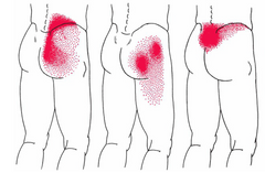 Low Back Pain Patterns Lifting
