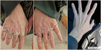 CBD for Psoriasis on hands