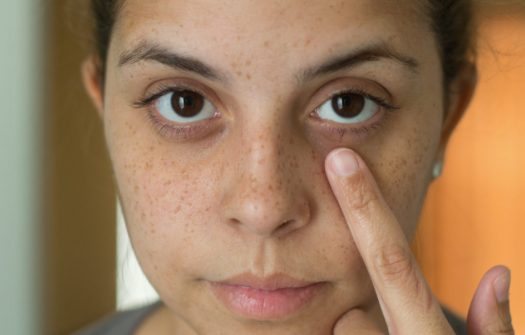 Treating and Preventing hyperpigmentation the Gentle and Effective Way