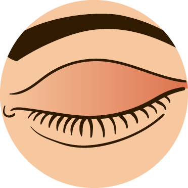 Gently place the contact lens on the white of your eye and slowly close your eyelid