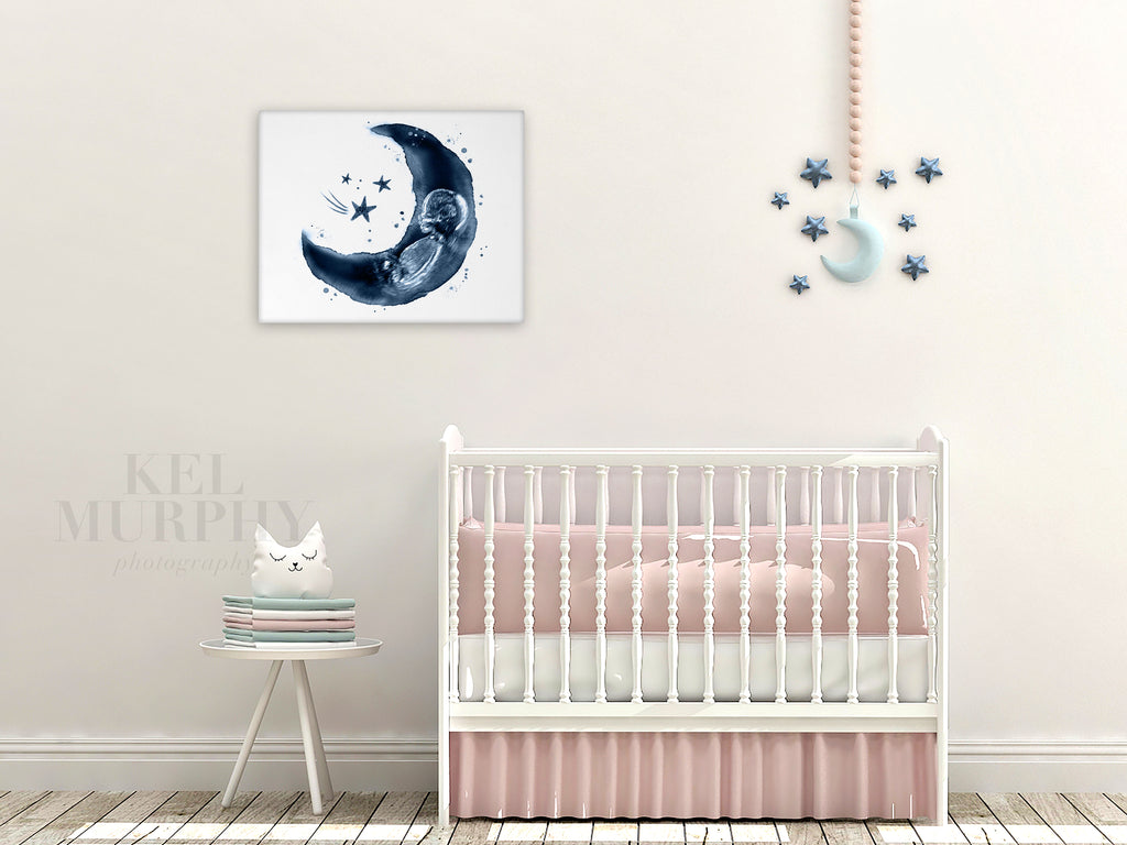 Canvas Wood Wraps wall art in nursery for custom ultrasound and embryo art prints