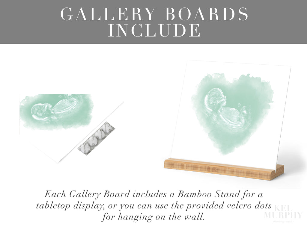 Gallery boards with bamboo stands include print upgrade for ultrasound and embryo designs